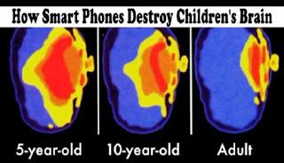 Otak rusak akibat smartphone
