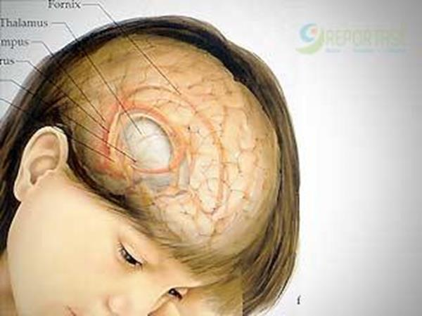 otak anak rusak